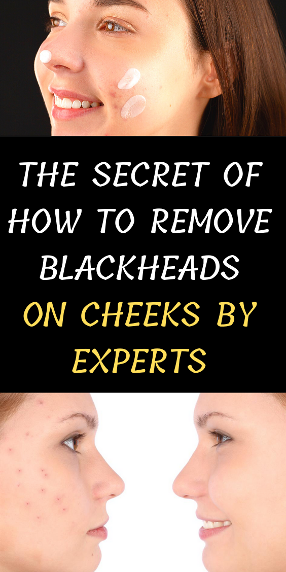 The Secret Of How To Remove Blackheads On Cheeks By Experts